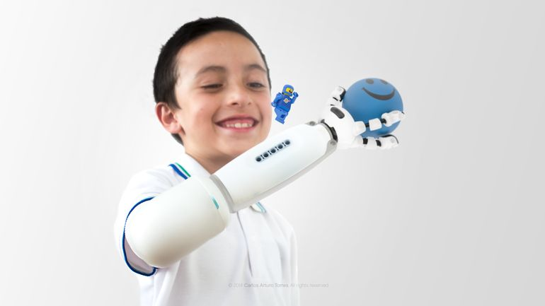 Prothese-LEGO-Enfant -4-